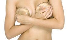 Augmentation mammaire avec prothèses mammaires
