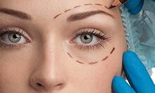 Lipofilling du visage